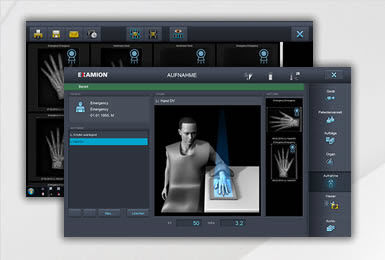control software / acquisition / radiography