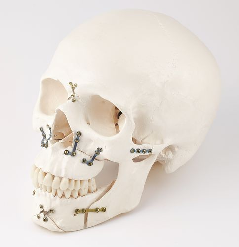 mandible compression plate