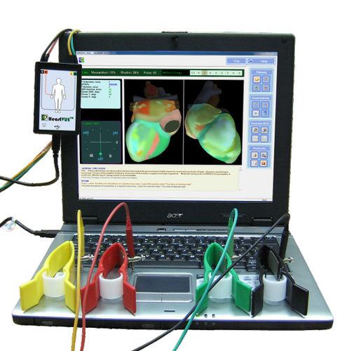 cardiac mapping system / ECG