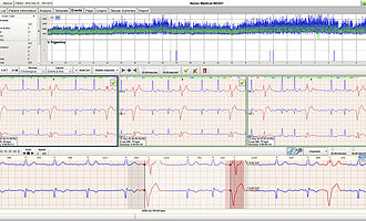 analysis software / recording / for cardiac Holter monitors