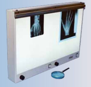 2-screen X-ray film viewer