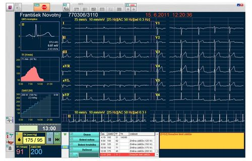 data management software module / recording / electrocardiography / stress test