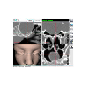 endoscopy software