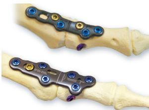 foot phalange arthrodesis plate