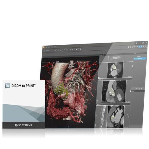 planning software / printing / medical imaging / preoperative