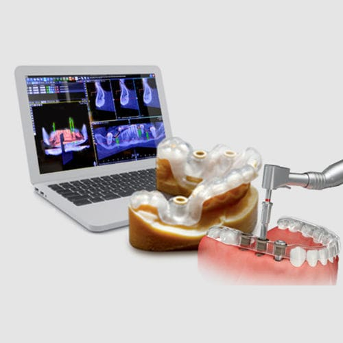 guided surgery software / analysis / 3D viewing / for dental implantology