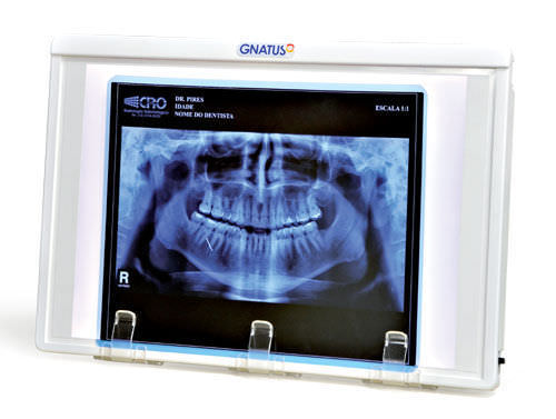 1-screen X-ray film viewer / with switch / dental / white light