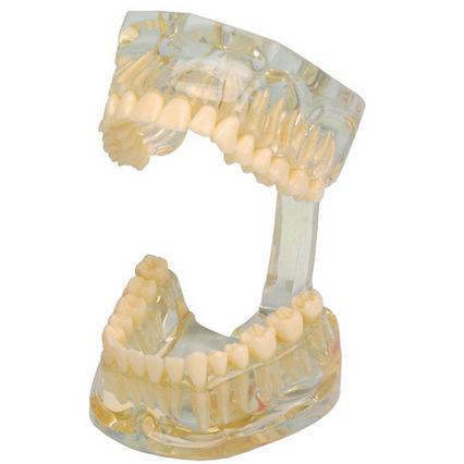 denture model / for teaching / transparent