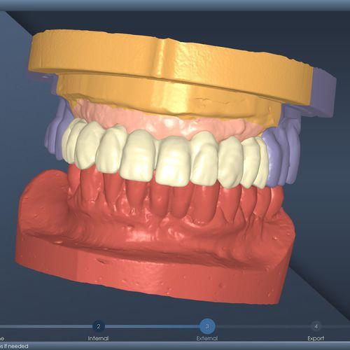 dental prosthesis design software / CAD / modeling / dental