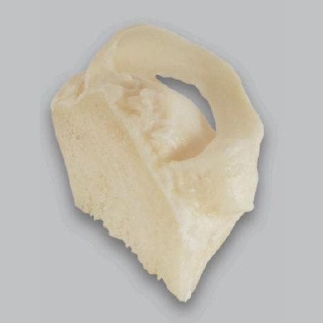 allograft meniscus implant