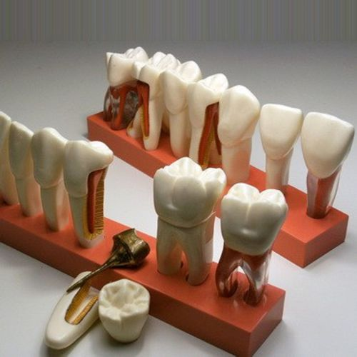 tooth model / for teaching