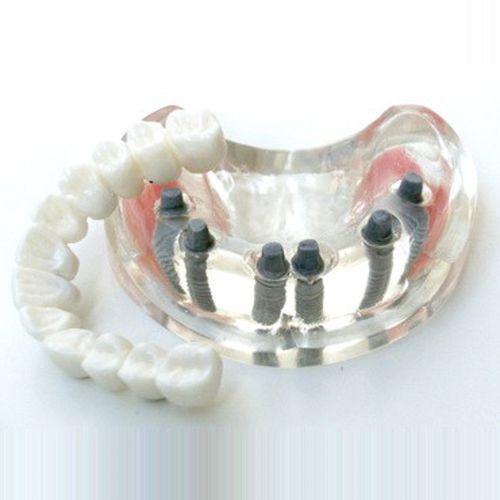 sinus model / dental / for teaching / for implantology