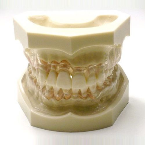 denture model / gingival / for teaching / transparent