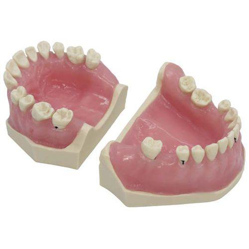 denture model / for teaching / pathological / for periodontics