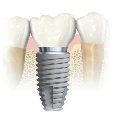cylindrical dental implant / titanium / conical / internal hexagon