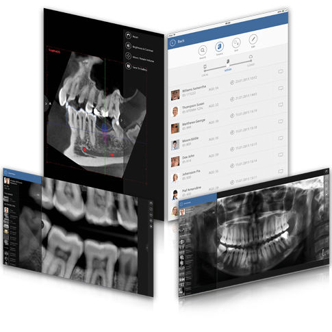 iOS visualization application / for dental imaging