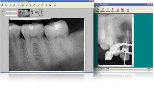 visualization software / for DICOM files / radiography / dental