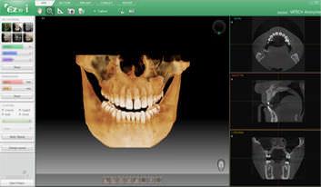 dental software