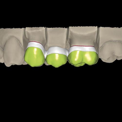 dental prosthesis design software / CAM / CAD / dental laboratory