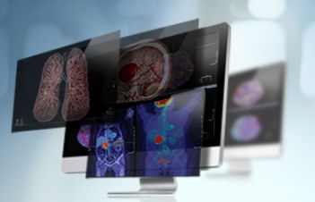 analysis software / diagnostic / 3D viewing / medical imaging