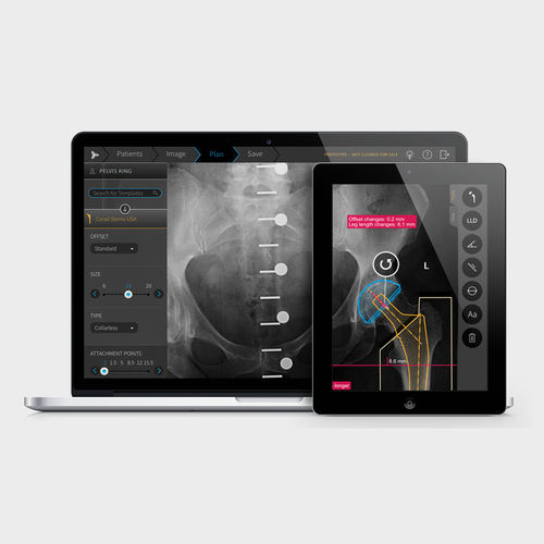 analysis software / viewer / preoperative planning / calibration