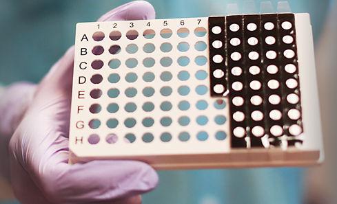 rapid respiratory disease test / respiratory syncytial virus / nasopharyngeal / laboratory