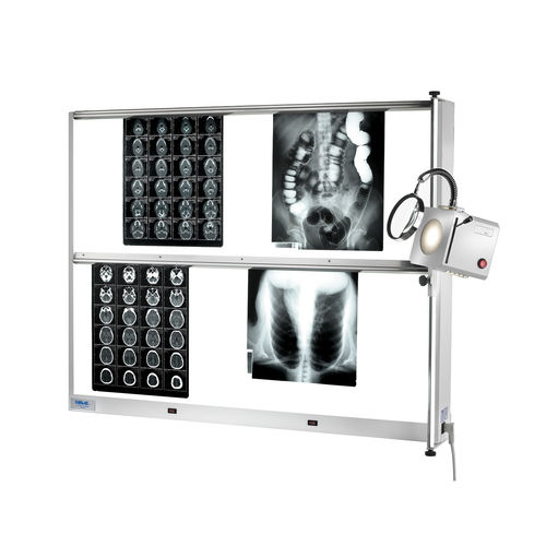 2-screen X-ray film viewer
