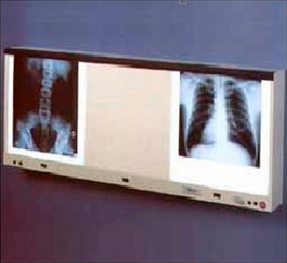 1-screen X-ray film viewer