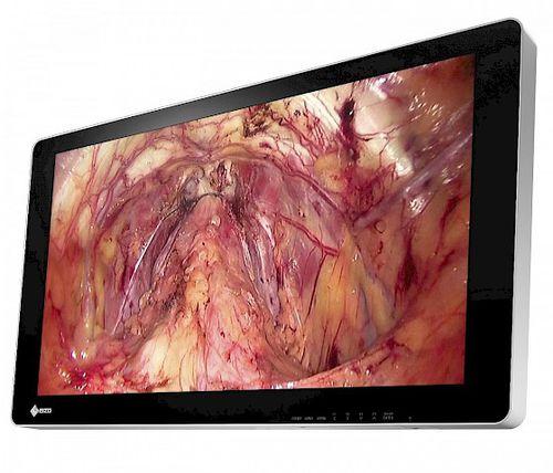 operating room display / endoscopy / full HD / 4K