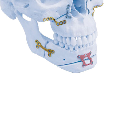 maxilla compression plate