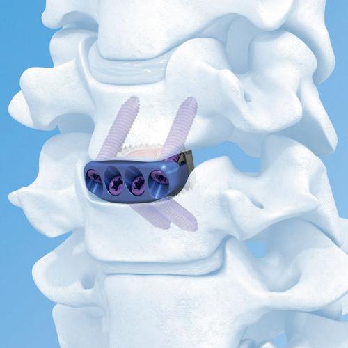 cervical interbody fusion cage