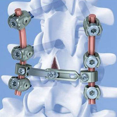 cervico-thoraco-lumbo-sacral spinal osteosynthesis unit