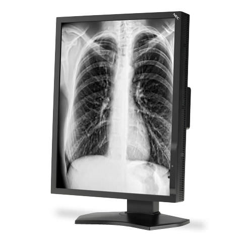 radiology display / diagnostic / 21.3in / LCD