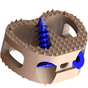 lumbar interbody fusion cage
