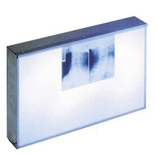 multi-screen X-ray film viewer
