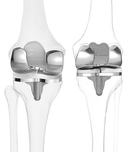 three-compartment knee prosthesis / cemented