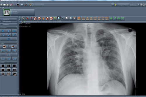 visualization software / for PACS / hospital / web-based