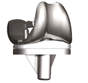 three-compartment knee prosthesis / fixed-bearing