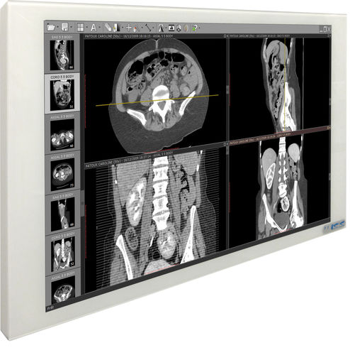 radiology display / full HD / 21.5