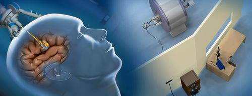 brain tumor treatment laser ablation system / MRI-guided