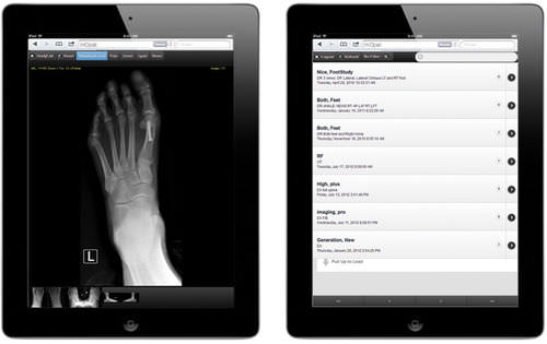 iOS visualization application / medical imaging / for PACS