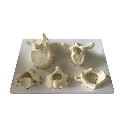 lumbar vertebra anatomical model