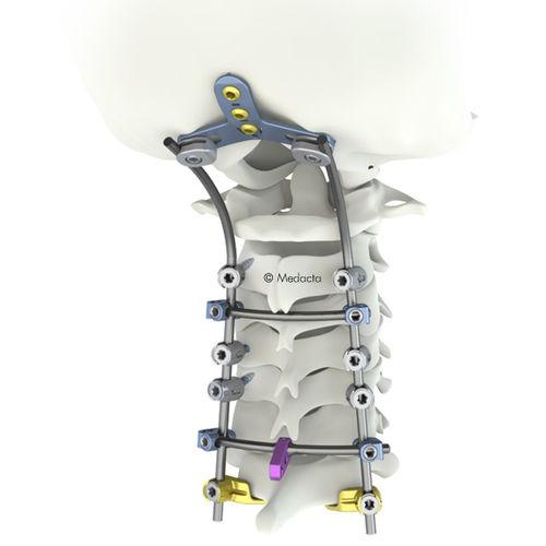 lumbar spinal osteosynthesis unit / posterior / adult