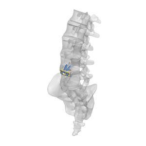 thoraco-lumbar interbody fusion cage / anterior