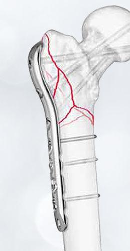 femur compression plate / proximal