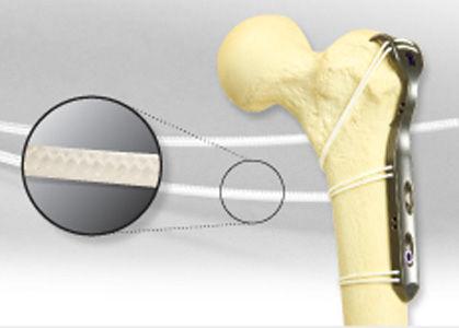 hip revision surgery bone cerclage wiring