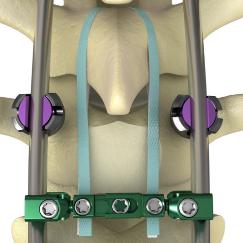 posterior spinal fixation band
