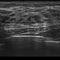 on-platform ultrasound system / for gynecological and obstetric ultrasound imaging / color doppler / 3D/4D