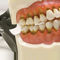 denture model / pathological / training
