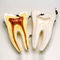 tooth model / for teaching / disarticulated